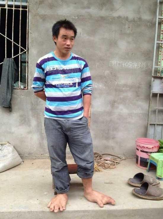 Ele andava no verão completamente descalço
