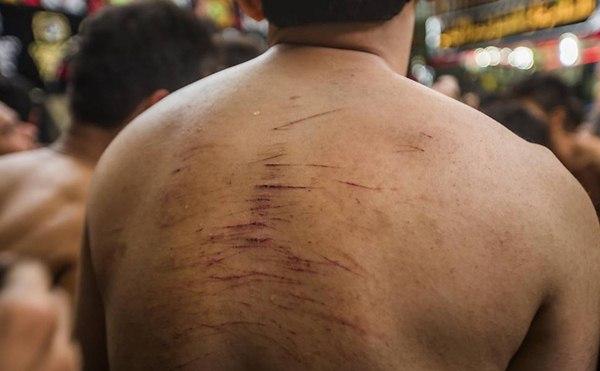 O autoflagelo, que consiste em jogar os braços sobre o próprio peito, bater na cabeça ou chicotear as costas até cortar a carne